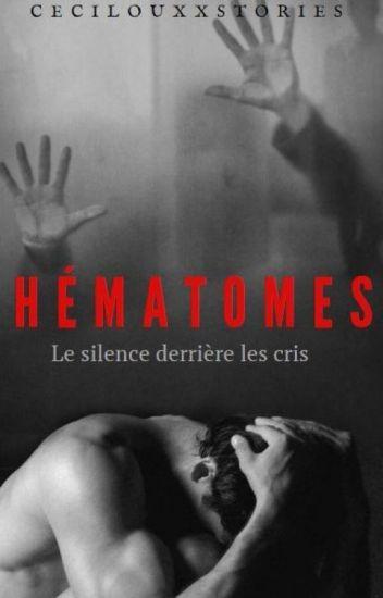 HEMATOMES