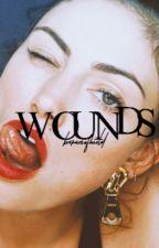 WOUNDS || SEBASTIAN STAN [PREQUEL] by barnesofshield