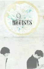 9pm Bruises [Larry Stylinson AU] by Larry_Lashton