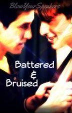 Battered & Bruised. [Kogan; BTR; BXB] by BlowYourSpeakers