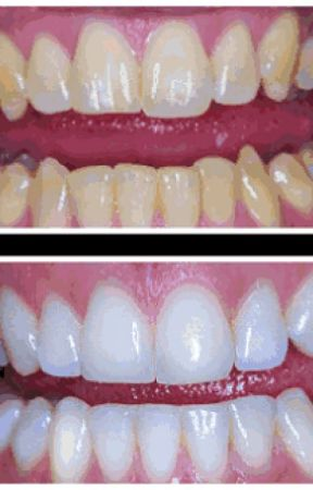 Teeth Whitening Strip Go Smile Teeth Whitening Pen Reviews Wattpad