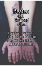 Beaten and Bruised >> c.a.l.m. by LittleFoxBrit