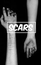 Scars || H.S by _JustALameGirl_