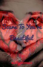 Scars To Your Beautiful (Devan Key Fanfic) by mistypecora