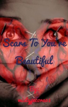 Scars To Your Beautiful by mistypecora