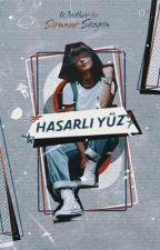 HASARLI YÜZ by Sirius_Writher