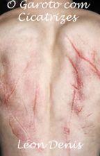 O Garoto com Cicatrizes by LeonDesu
