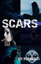 SCARS ~ Skrillex Y Tu (PAUSADA) by yulicom